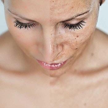 Voor en na Skinimprover